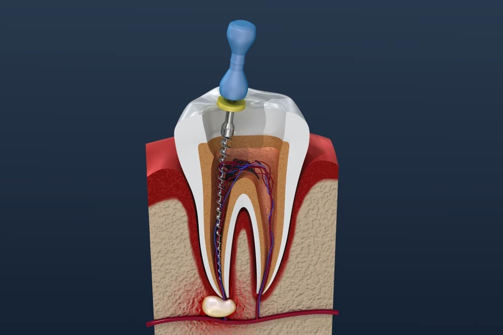 Root Canals Melbourne Family Dentist