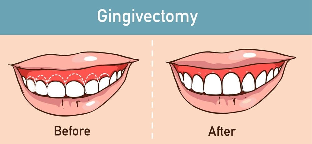 Gingivectomy Melbourne Family Dentist